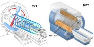 разница МРТ и КТ